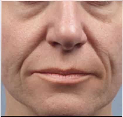 Wrinkles Treatment in Melbourne, Sydney , Brisbane and Perth