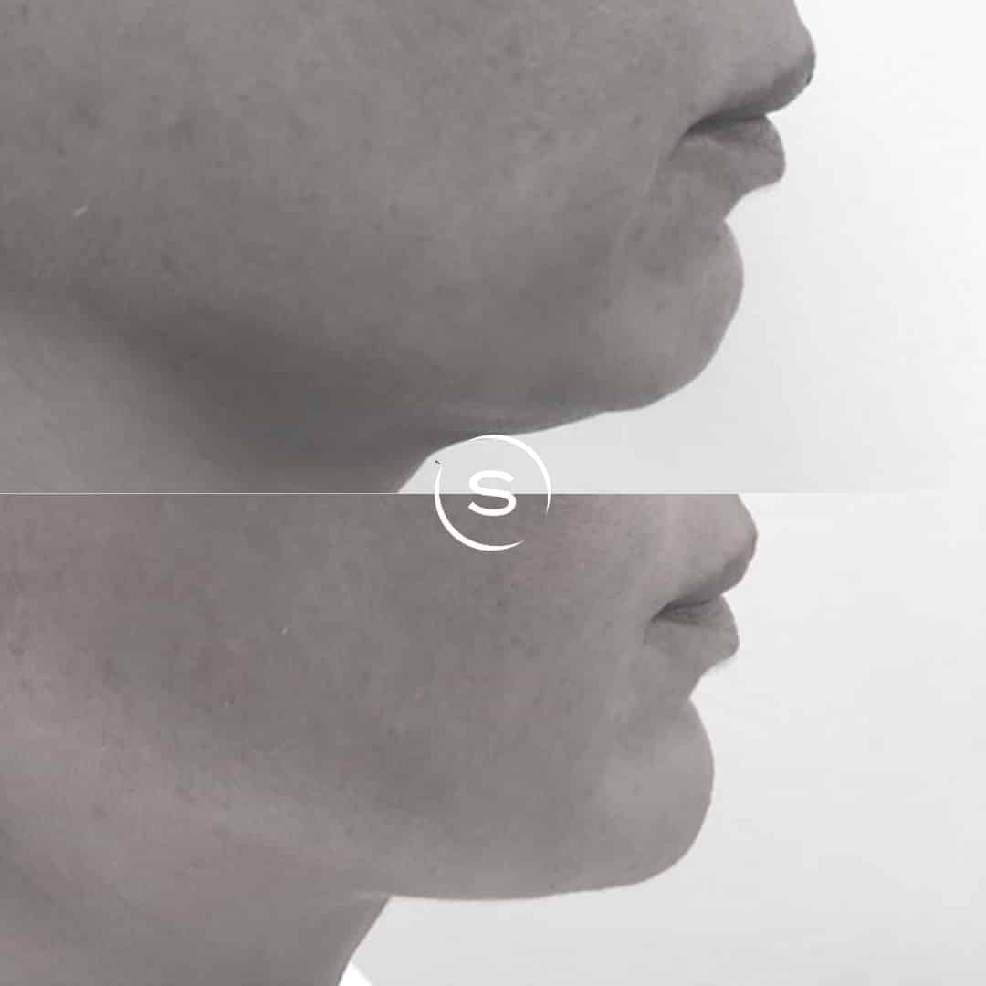Before & After Chin Filler Treatment