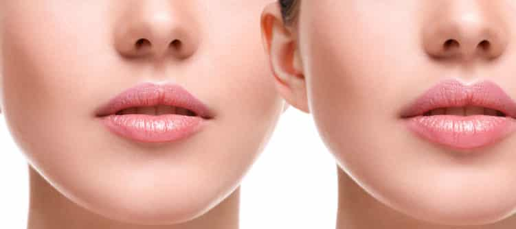 Customise Your Lips with Lip Filler Treatments in Melbourne