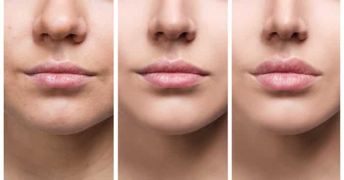 Seven Myths about Lip Filler